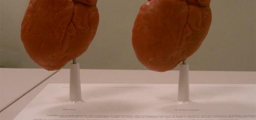 Анатомическая модель сердца Фото 4
